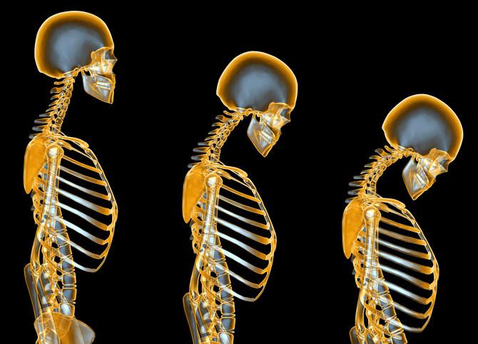 Kako prolaze godine manjak vitamina D nas sve više ugrožava