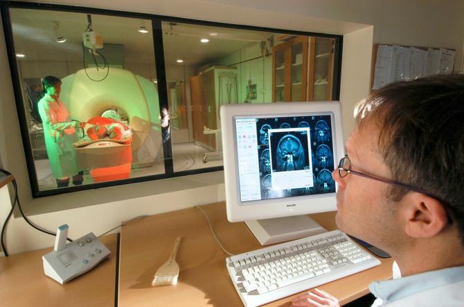 Nova istraživanja ukazuju na rizik od neuroloških komplikacija usled Kovida-19