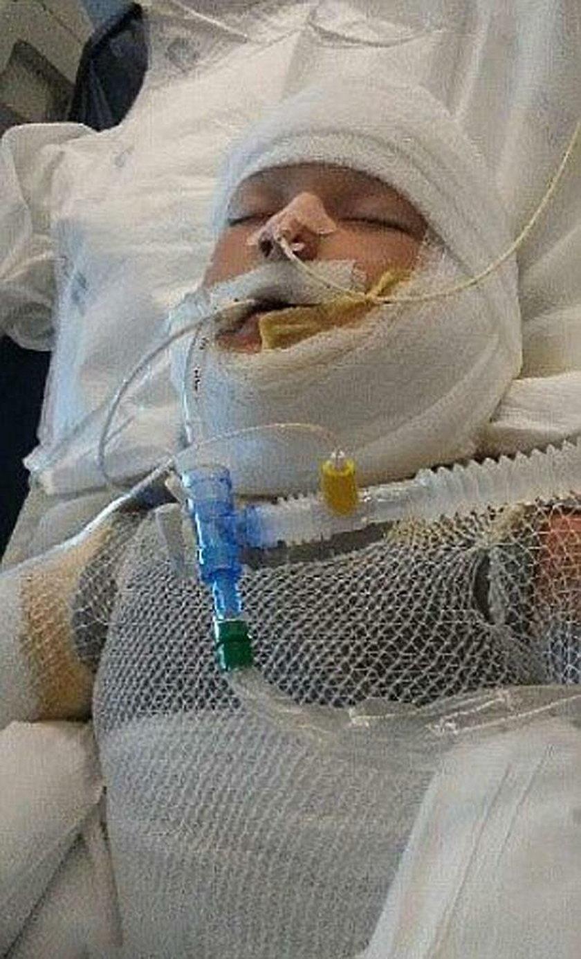 Dzieci podpaliły niepełnosprawnego 10-latka
