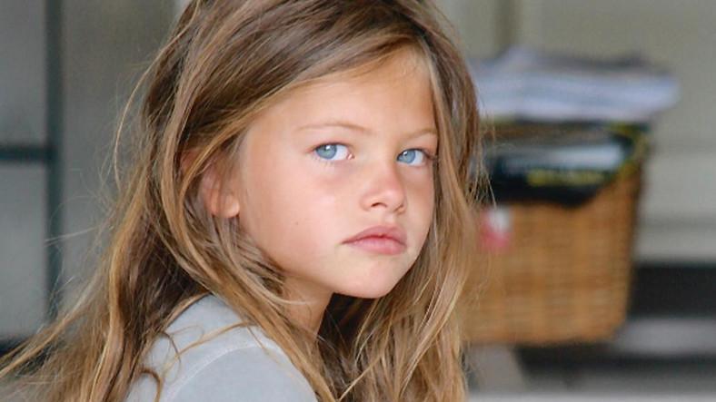 A világ legszebb gyereke, akinek a fotója körbejárta a világot már 20 éves: így néz ki most