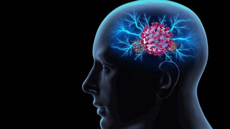 Koronawirus w mózgu. Covid-19