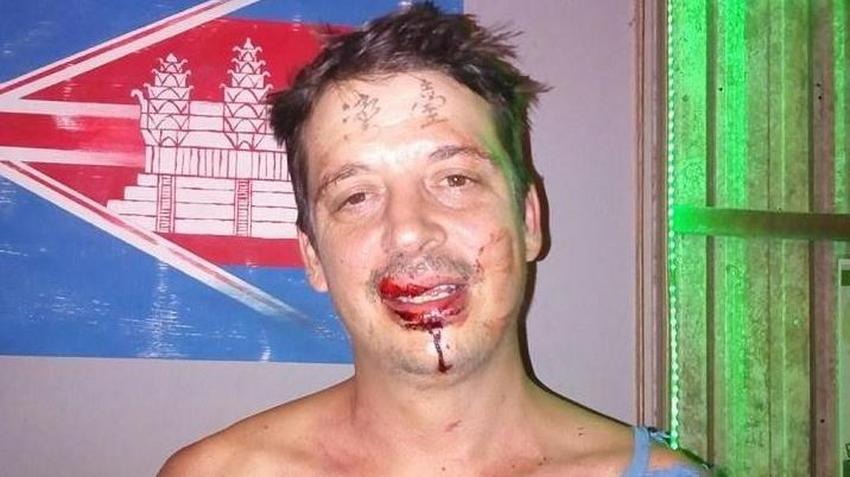 Brytyjczyk Wyautował Sobie Na Czole Tajwan Pobili Go