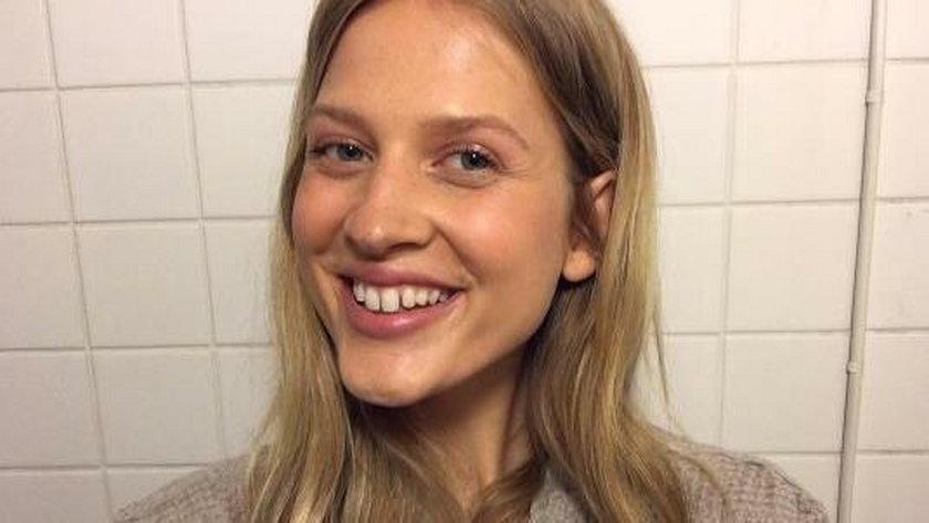 Te modelki maja brzydkie zęby