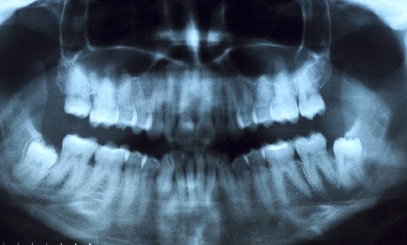zęby prześwietlenie stomatolog ilustracja