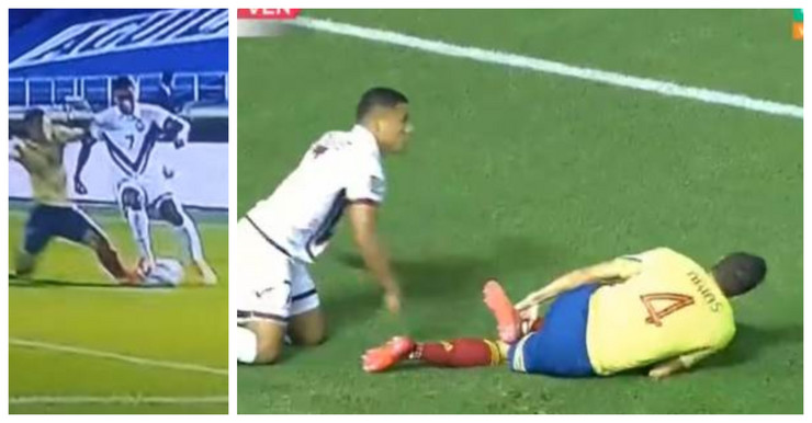 Kolumbijac, sam sebi slomio nogu