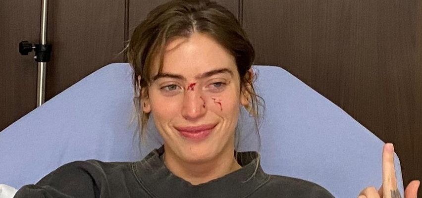 Córka gwiazdora z ranami na twarzy! Ten atak mógł skończyć się bardzo źle