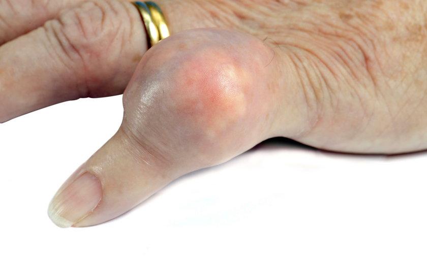 Prątki gruźlicy spowodowały opuchliznę małego palca. Zdjęcie ilustracyjne