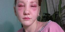 Kosmetyczka wypaliła dziewczynce oczy
