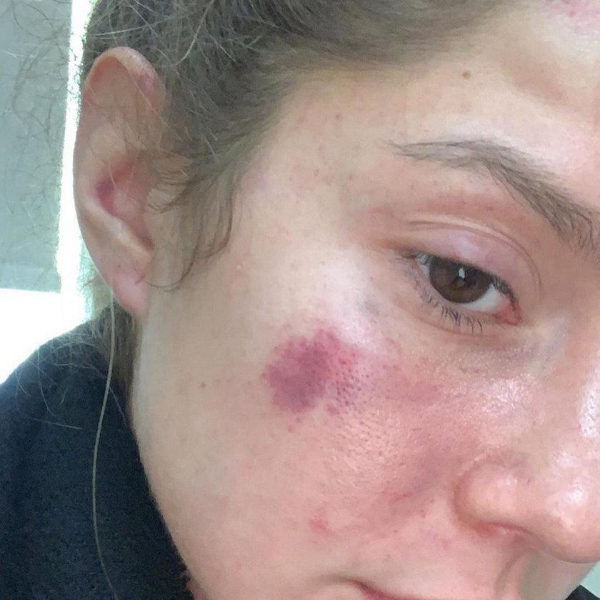 Argentyna: Najpierw zaatakował modelkę, później upokorzył policję