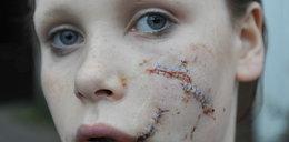 Rozwścieczony husky rozszarpał 12-latce twarz