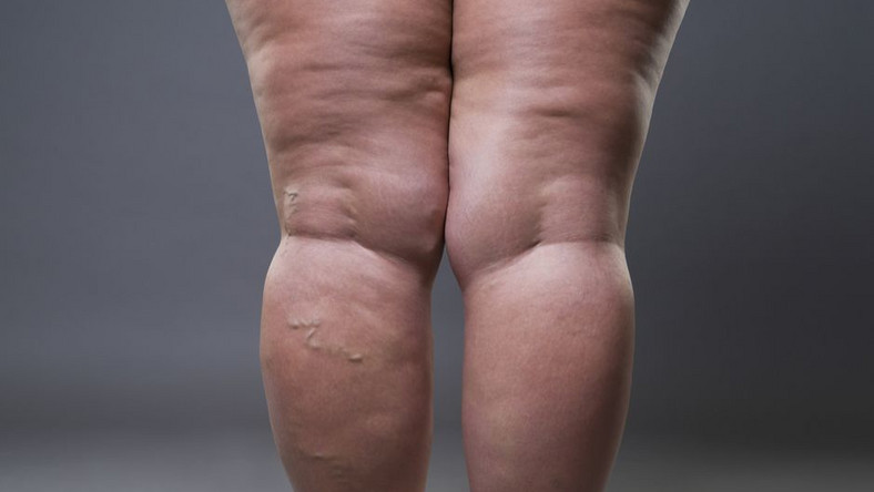 Habits that cause cellulite(inquisitr)
