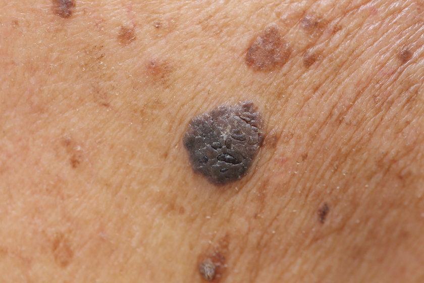 Któż z nas ma skórę zupełnie pozbawioną pieprzyków?