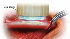 Lekarze naprawiają serce przy pomocy kleju
