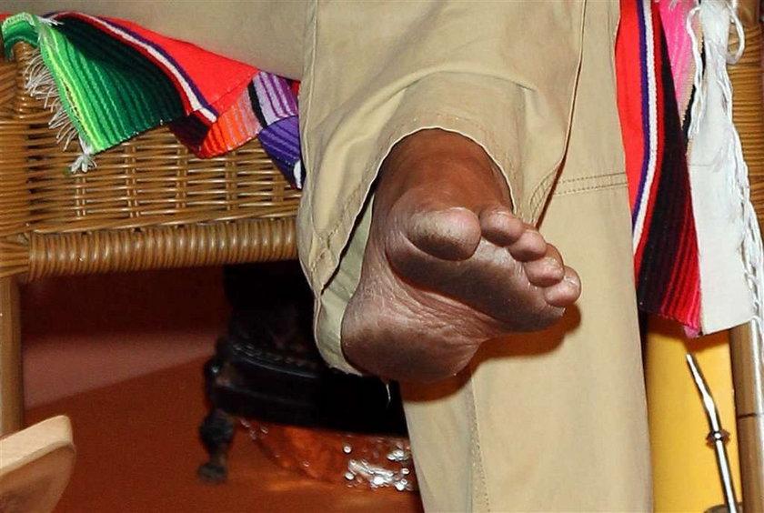 Cejrowski ufajdał sobie stopę