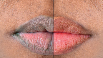 Lips: Here are 5 naturally ways to make them soft and pink [Medium]