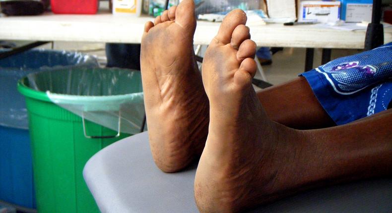 Rough feet(Gini in Africa)