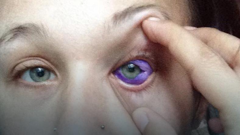 Chciała Mieć Oczy Jak Popek Przez Co Prawie Straciła Wzrok