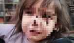 Mała, zmarznięta dziewczynka błąkała się po ulicach Wrocławia. Odnaleźli jej rodziców...