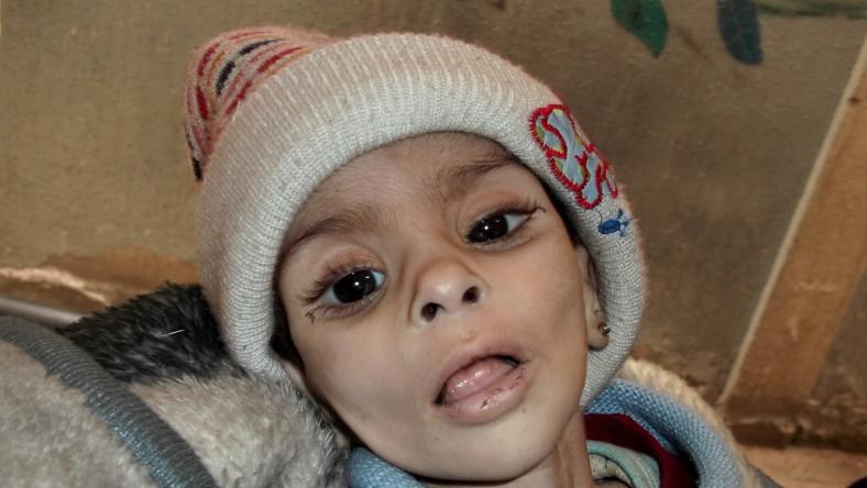 Israa al-Masri, dziewczynka, która mieszkała w głodującym obozie Jarmuk pod Damaszkiem. Zmarła wkrótce po zrobieniu tego zdjęcia