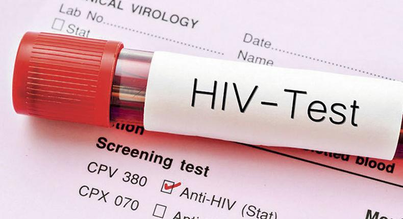 Zero HIV Cases in this county