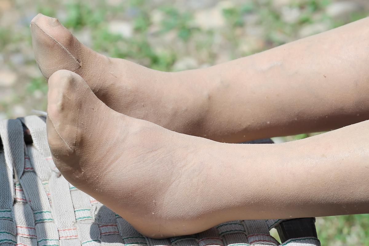 ha a lábak megduzzadnak és piros foltok jelennek meg fotó