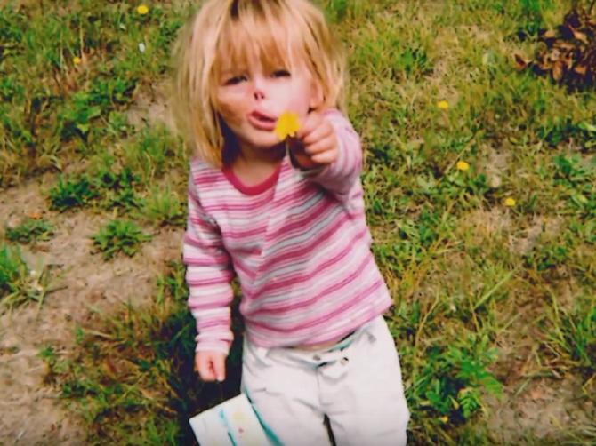 Rakun joj pojeo nos, usnu i uši pre 14 godina: Danas izgleda OVAKO