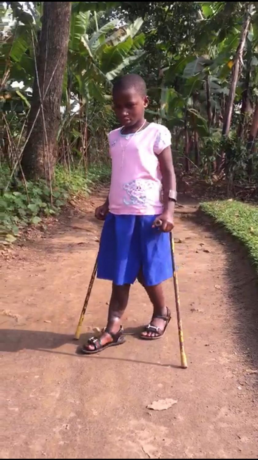 Uratujmy nogę Seraphine z Rwandy!