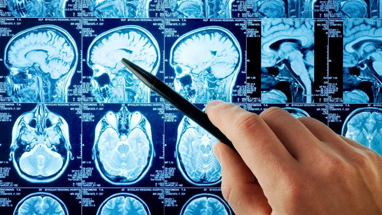 Polskie cele w Unii: chronić mózg, walczyć z alzheimerem