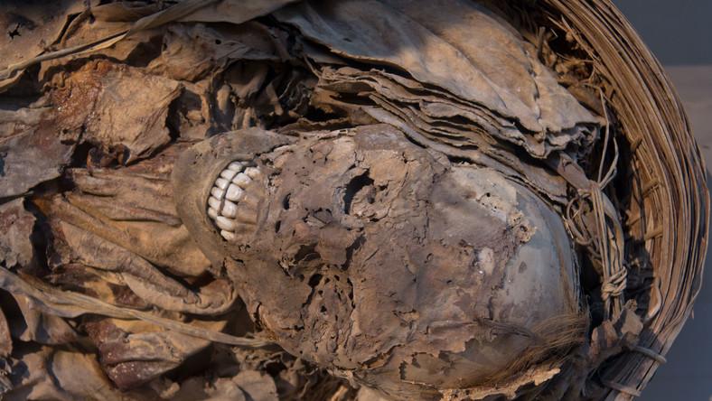 Miażdżyca tętnic nie jest współczesną chorobą cywilizacyjną?