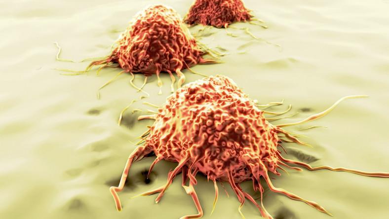 Wczesna diagnoza ułatwia leczenie raka