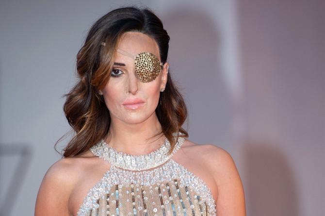 Italijanskoj manekenki su lekari delimično uspeli da rekonstruišu lice