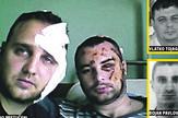 brutalno pretučeni policajac i zatvorski čuvar