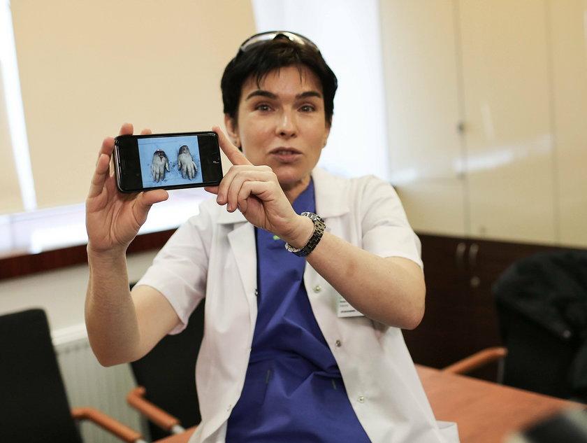 Dr Anna Chrapusta pokazuje operacje