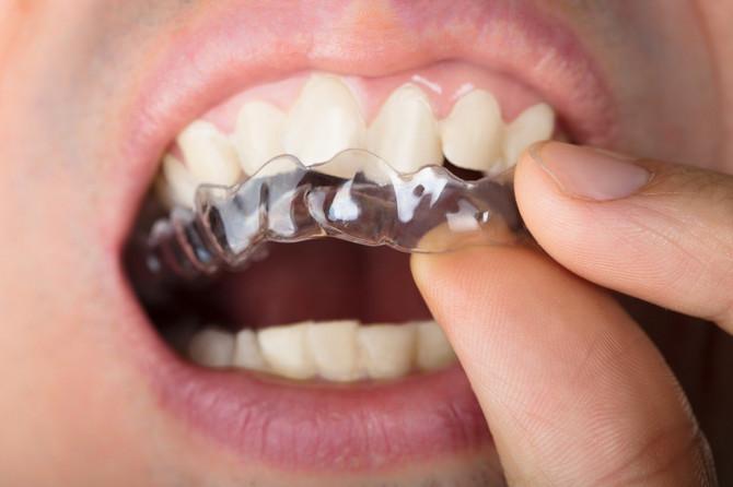 Ajlajneri su idealno rešenje za manje nepravilnosti zuba