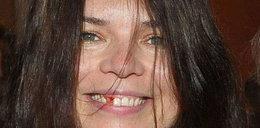 Krwawiący ząb Doroty! Na salonach zawrzało! FOTY