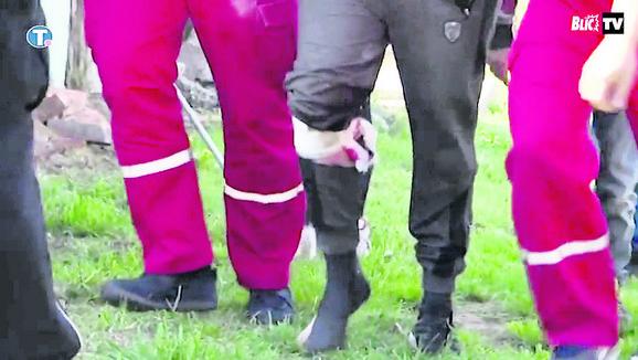 Protiv vlasnika rotvajlera će biti podneta krivična prijava zbog izazvanja opšte opasnosti
