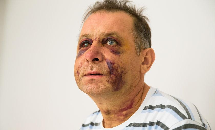 Agresywny wuefista skatował kolegę. Wcześniej zaatakował ucznia