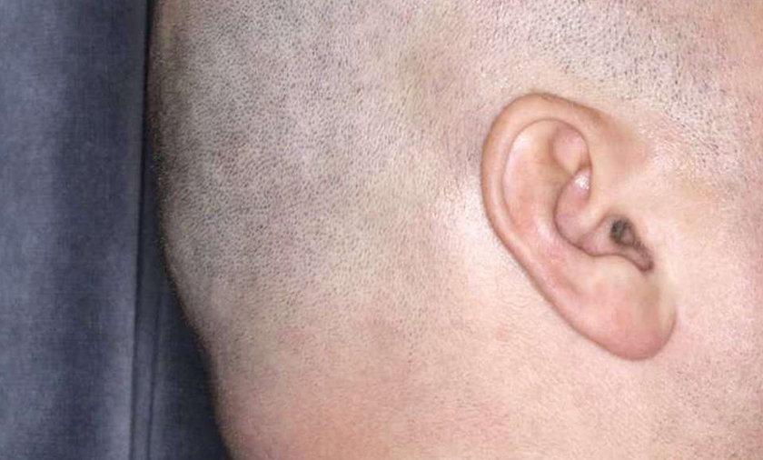 Odgryzł kawałek ucha więźniowi