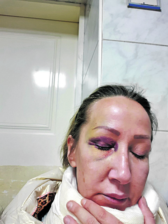 Nesrećna žena Emilija Petrović oporavlja se nakon batinanja i mučenja