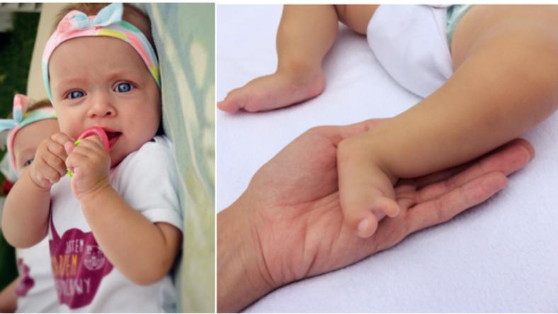 Jedynym ratunkiem dla Zosi jest zagraniczna operacja, bez której dziewczynka nigdy nie stanie na własnych nogach