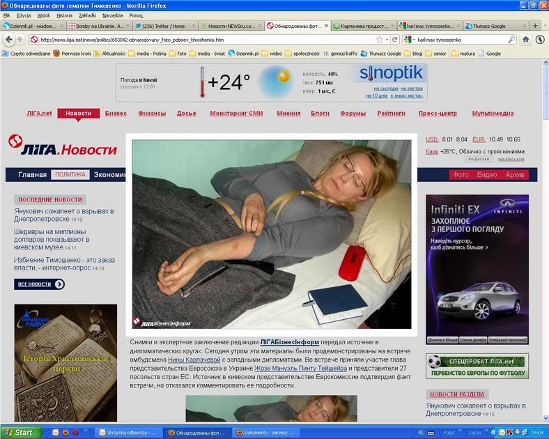 Julia Tymoszenko pokazuje siniaki na swoim ciele