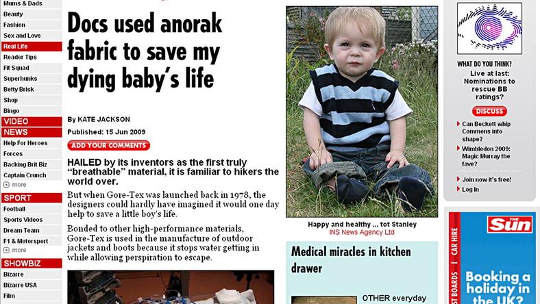 Gore-Tex uratował życie małemu chłopcu