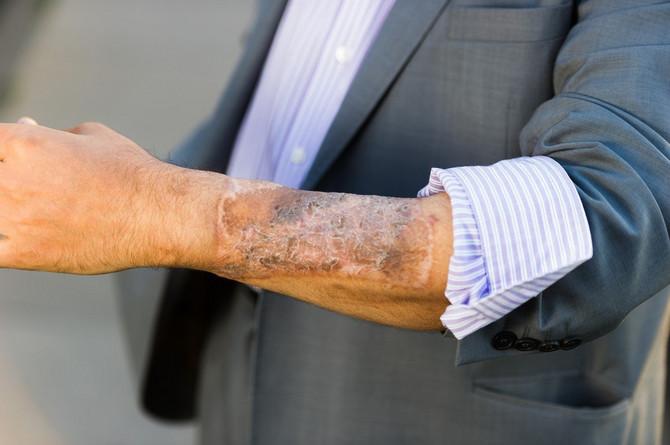 Koža na penisu potiče od njegove ruke