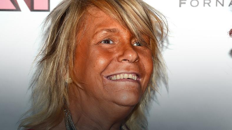 Patricia Krentcil - ofiara nałogu opalania