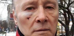 Znany aktor wdał się w bójkę w Warszawie. Sprawę wyjaśnia policja