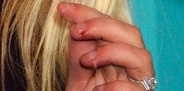 Krwawiące dłonie jurorki. Zaniedbała się