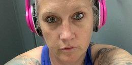 42-latka powiększyła sobie piersi. Implanty prawie ją zabiły