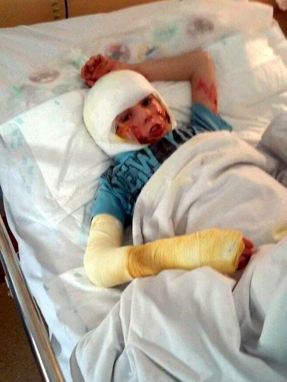 Rodzice poparzonego Alana: Pomóżcie naszemu synkowi!