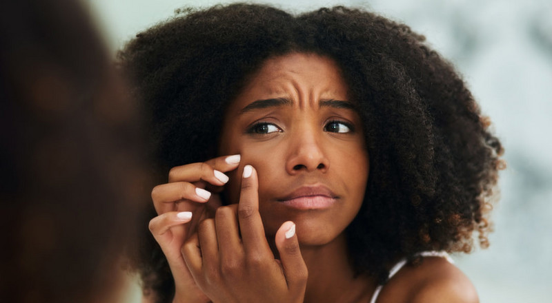 5 quick pimple fixes you need to know about