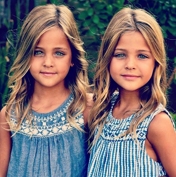 Najlepše bliznakinje na svetu